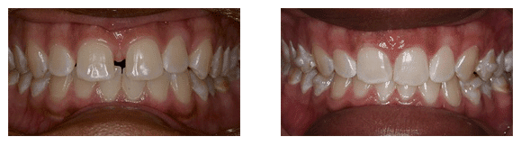 Marietta Smile Makeover Before & After