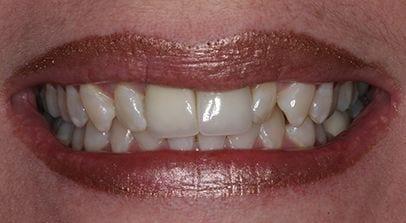 Complete Smile Makeover and Reconstruction, Marietta GA