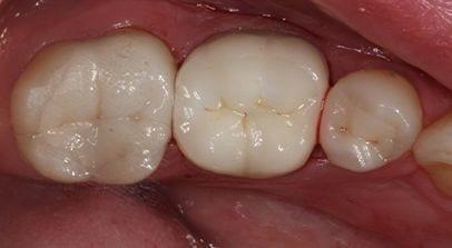 General Dentistry, Marietta GA