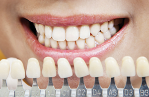 crowns and porcelain veneers in marietta