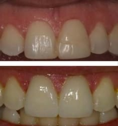 Jason's before and after porcelain veneers