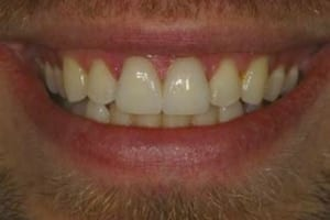 Porcelain Veneers Treatment Marietta