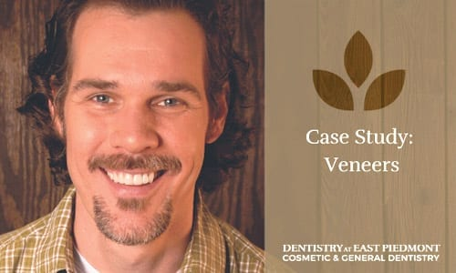 Jason's Veneers Case Study