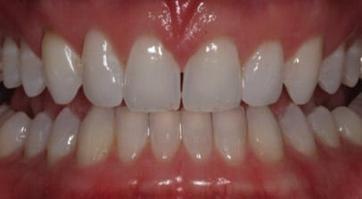 Cosmetic Dentist Invisalign After