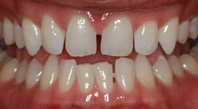 Cosmetic Dentist Invisalign Before