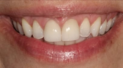 Cosmetic Dentist Cerec Crown After