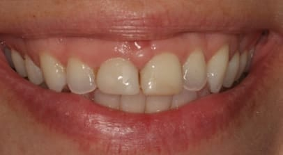 Cosmetic Dentist Cerec Crown Before