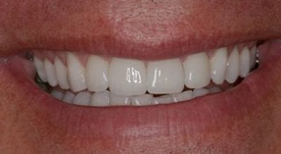 Cosmetic Dentist Smile Makeover After