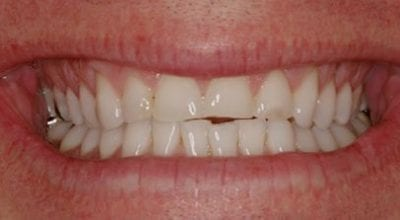 Cosmetic Dentist Smile Makeover Before