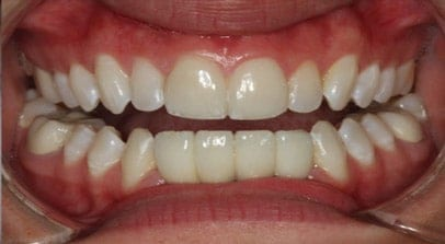 Cosmetic Dentist Implants After