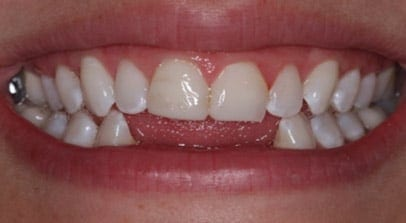 Cosmetic Dentist Implant Before