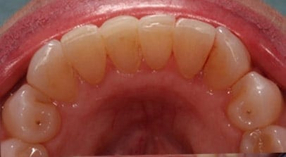 Cosmetic Dentist Inman Aligner After
