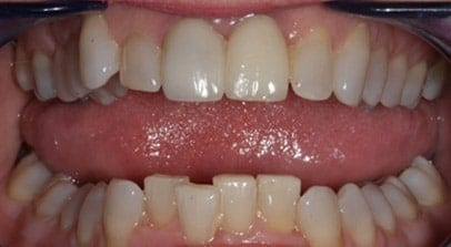 Cosmetic Dentist Inman Aligner Before