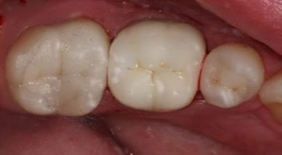 tooth color fillings after