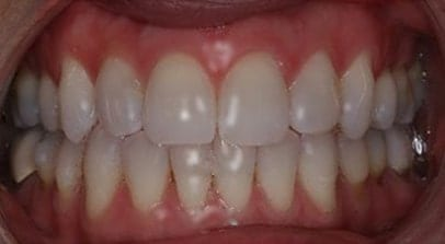 teeth whitening after Invisalign
