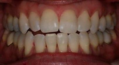 teeth whitening before Invisalign