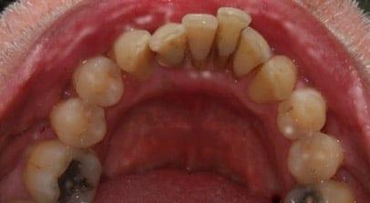 before implant denture hybrid