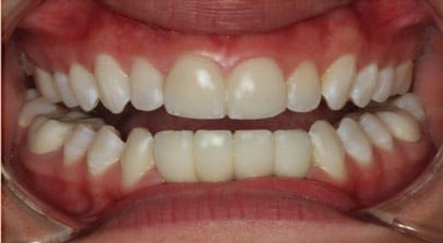 after lower implant bridge