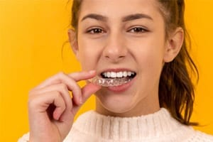 invisalign aligners use button attachments for crowded teeth